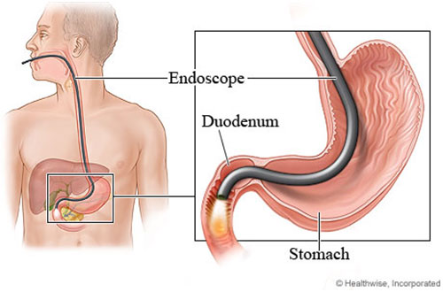 Advanced Interventional Endoscopy
